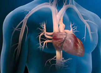 Reemplazan-valvula-aortica-por-cateterismo