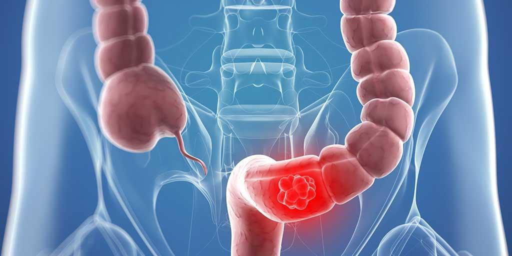 Cancer de colon: múltiples factores incrementan el riesgo