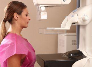 cancer mama avanzado