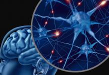 epilepsia refractaria